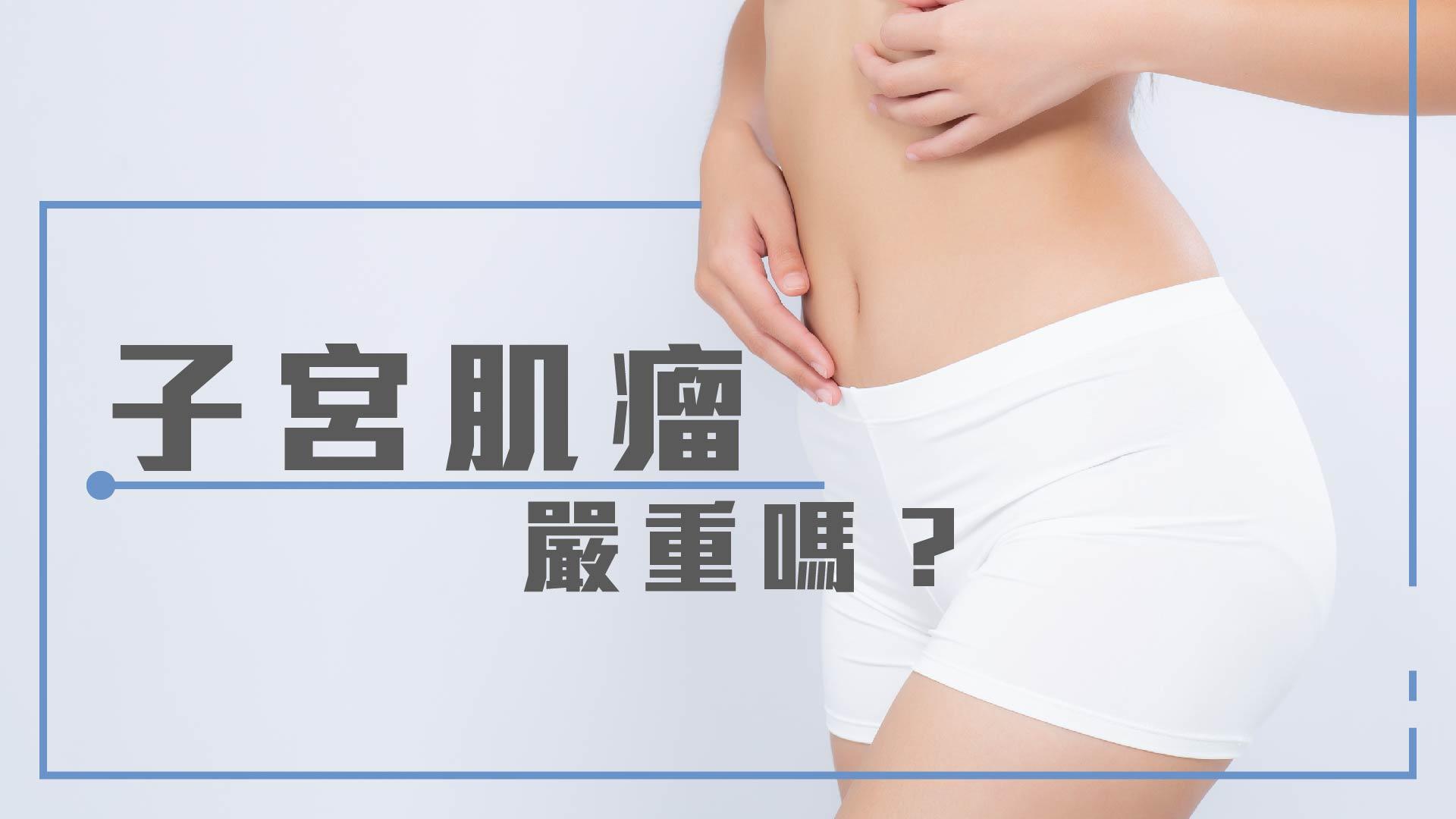 子宮肌瘤嚴重嗎?