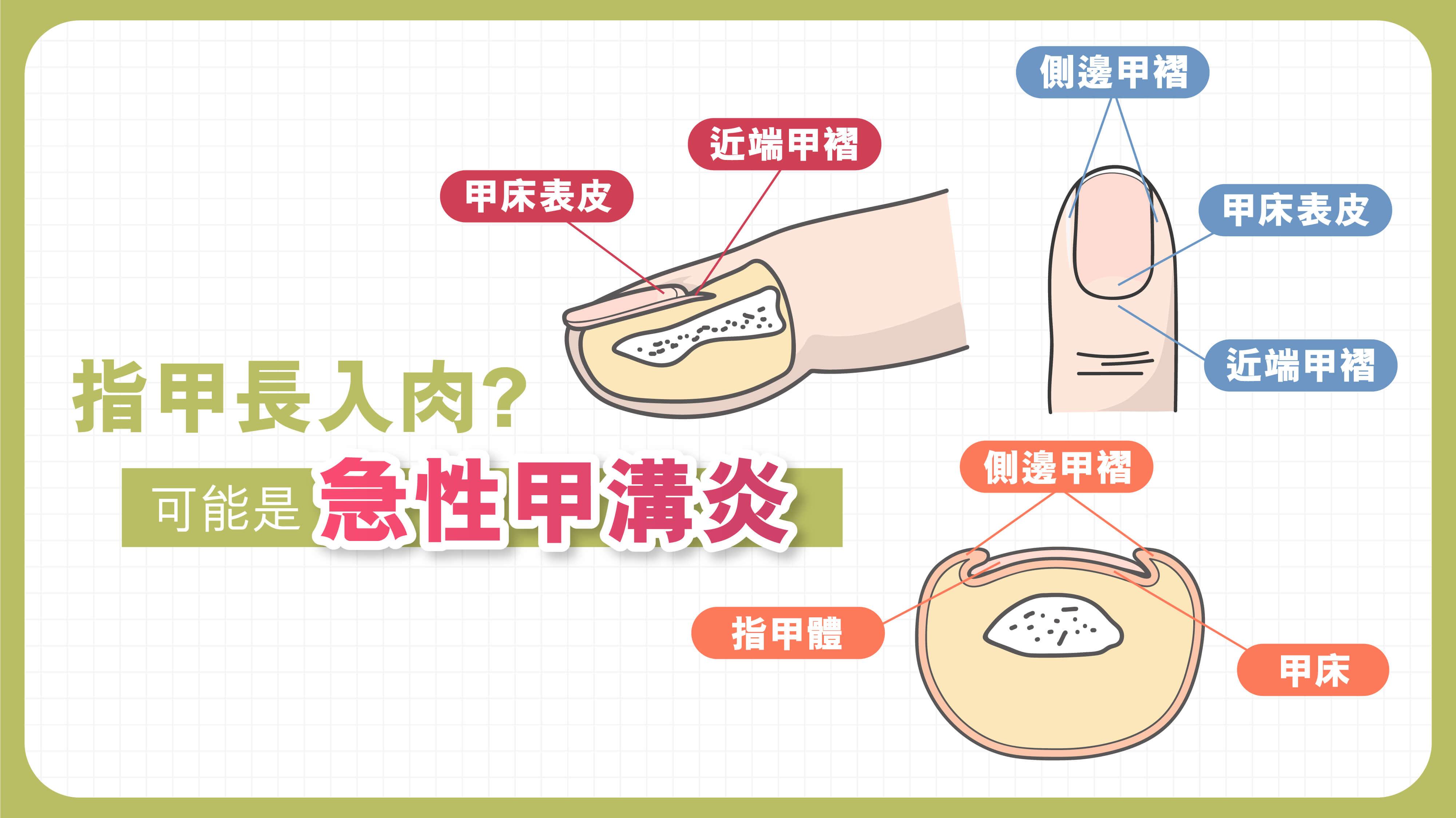 【指甲長入肉?】可能是急性甲溝炎